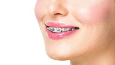 Aparaty ortodontyczne w niższej cenie