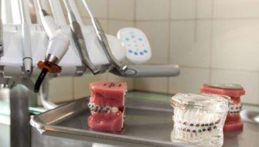 Nowa promocja na aparaty ortodontyczne